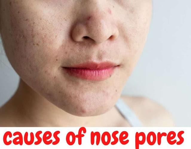 causes nose pores