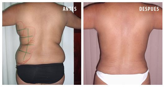 Safe Liposuction, Lipolaser, SmartLipo, Liposuction in Peru