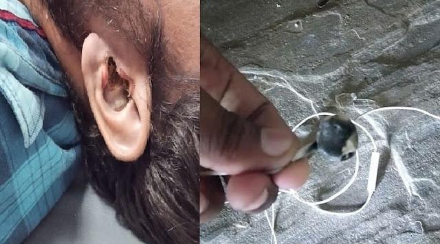 28-летний мужчина из Индии умер после того, как наушники взорвались в него прямо в ухе