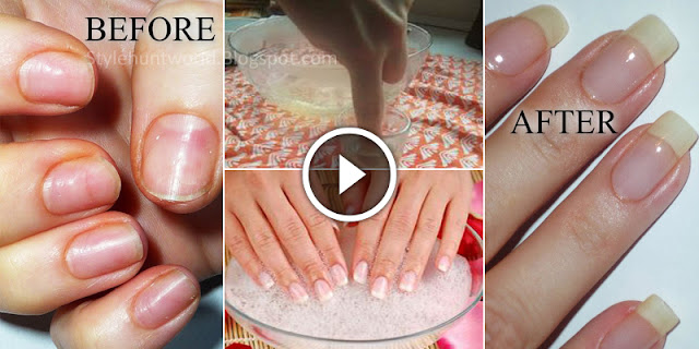 How To Grow Nails Very Fast With An 5 Simple Ways!