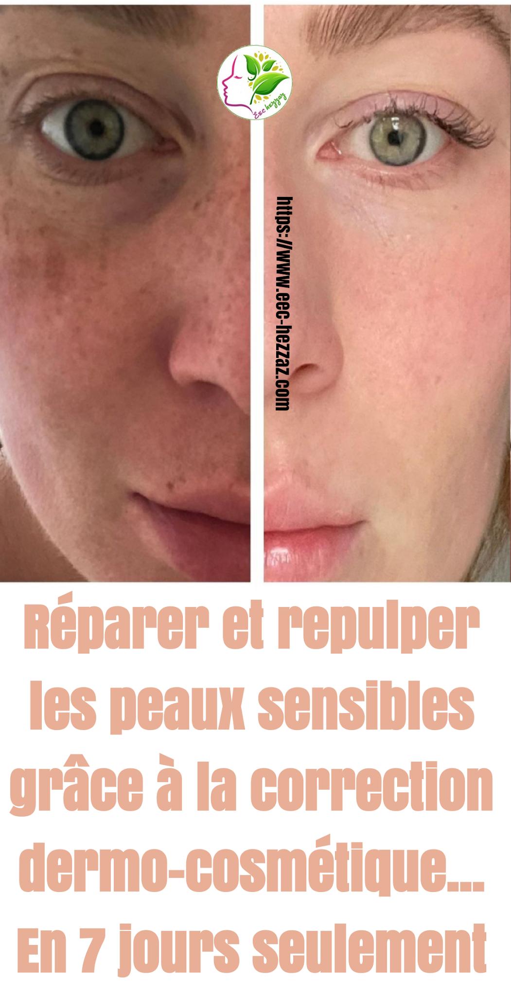 Réparer et repulper les peaux sensibles grâce à la correction dermo-cosmétique... En 7 jours seulement