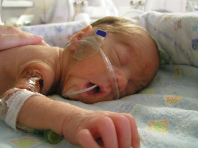 it's just Laine: The Birth Story of My 28-Week Preemie ...
