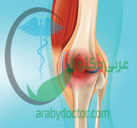 التهاب المفاصل :الاعراض والاسباب وطرق العلاج