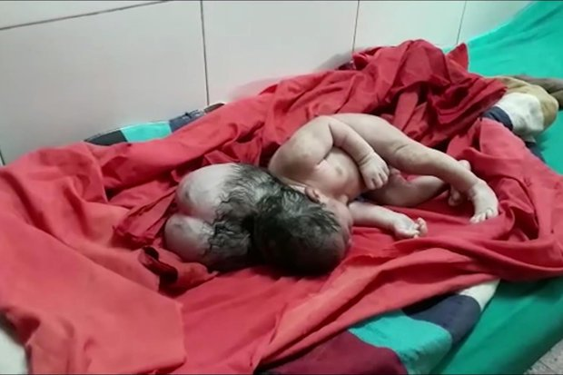 3 Headed Baby Girl in India 1`