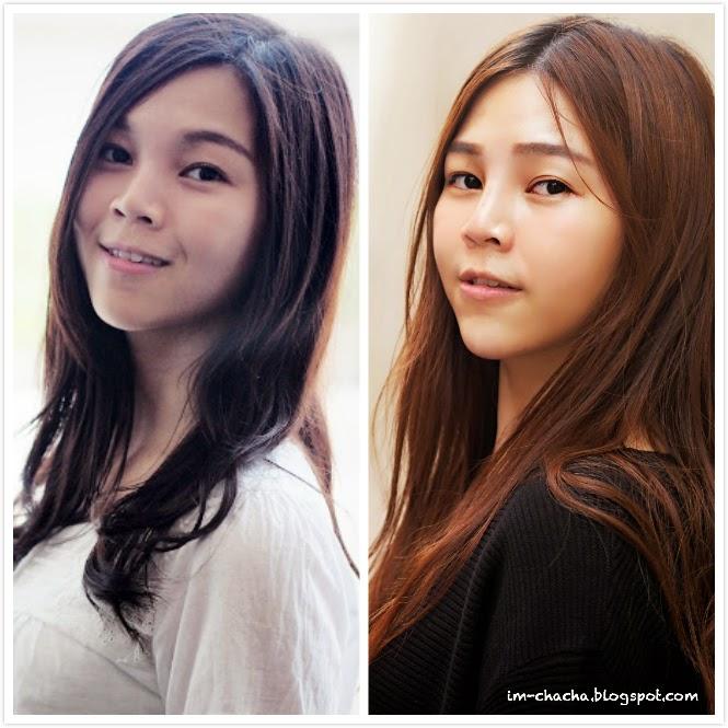 Botox + Fillers : 3 Steps to Korean Heart Shaped V-Face