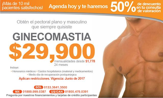 precio ginecomastia pechos de hombre guadalajara