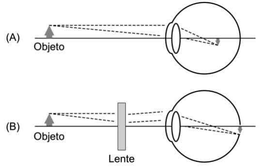 Miopia é a formação de uma imagem desfocada ou borrada antes da retina quando se observam objetos distantes, conforme ilustra a figura A abaixo