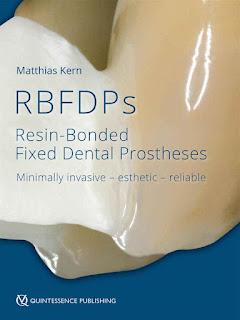 RBFDPs Resin-Bonded Fixed Dental Prostheses