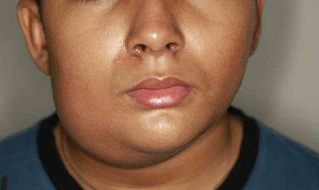 Parotitis Definition, Symptoms and Treatment