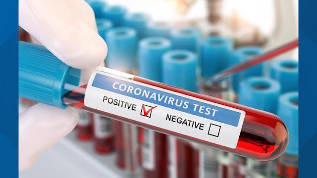المهدية : تسجيل 37 إصابة جديدة بفيروس كورونا
