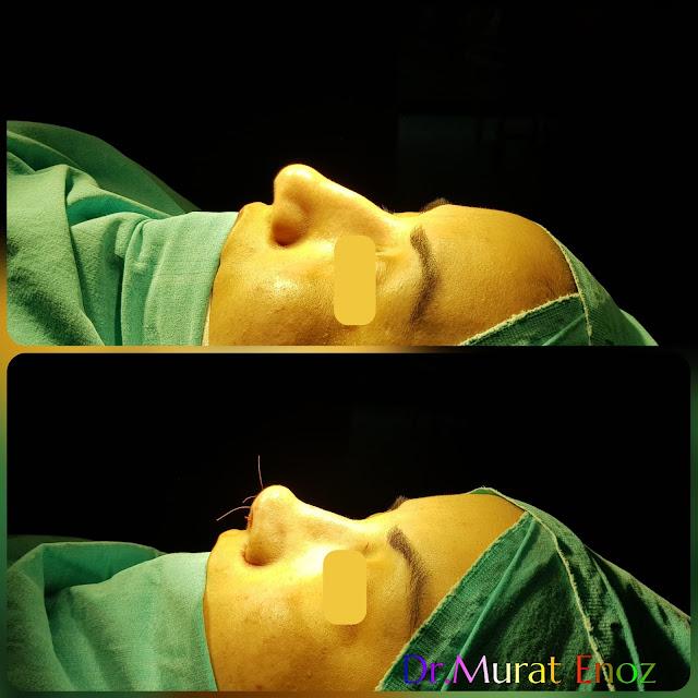 Rhinoplasty 1 month vs 5 Months,Rhinoplasty in Women Istanbul,Female Nose Job,