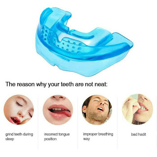 teeth trainer penyebab gigi tidak rapi