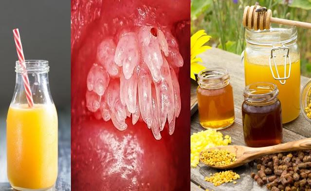 Prévention et traitement du virus du papillome humain : 5 remèdes maison