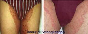 Obat ampuh atasi gatal selangkangan disertai kulit memerah dan kering