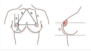 harga efek samping ayla breast care nasa