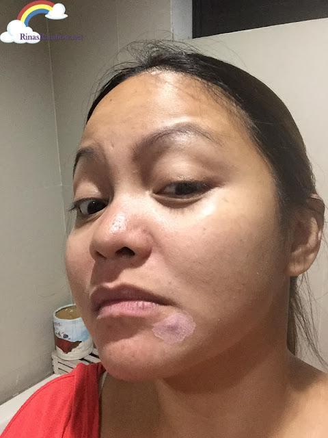 AcneCare acne spot solution