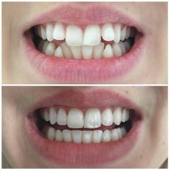invisalign untuk gigi tonggos