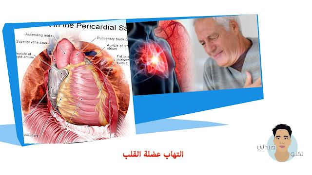 14 معلومة حول التهاب عضلة القلب