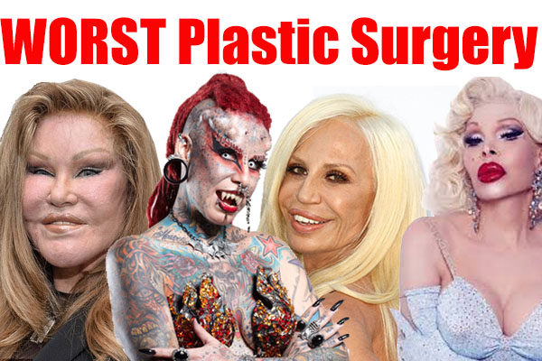 TOP 10 WORST Plastic Surgery DISASTERS
