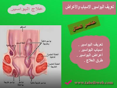 تعريف البواسير, الاسباب والأعراض