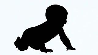 Penyakit Kawasaki Pada Bayi