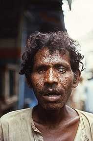 Smallpox is caused by variola viruses, which are large, enveloped, single-stranded DNA viruses of the Poxvirus family and the Orthopoxvirus genus