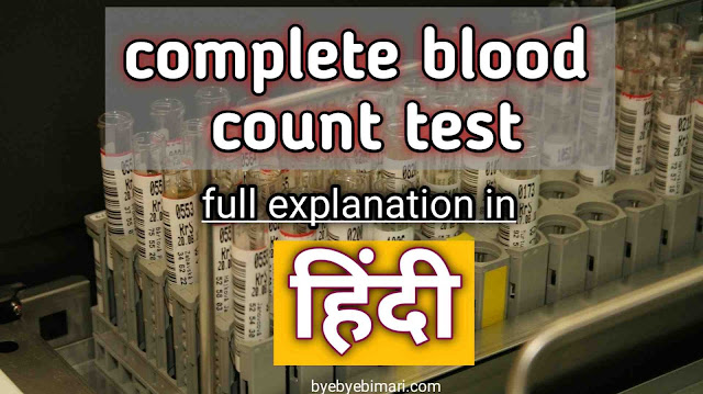 C B C test Kya Hai, c b c test kya h, CBC test meaning in hindi, CBC test full form, full form of CBC test in hindi