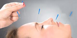 Akupunktur Ve Zayıflama ile ilgili aramalar akupunktur ile zayıflama yorumları  akupunktur ile zayıflama fiyatları  akupunktur ile zayıflamanın zararları  akupunktur ile zayıflama diyet listesi  akupunktur ile zayıflama fiyatları  akupunktur ile zayıflama ekşi  akupunktur ile zayıflama fiyati  akupunktur ile zayıflama yorumları