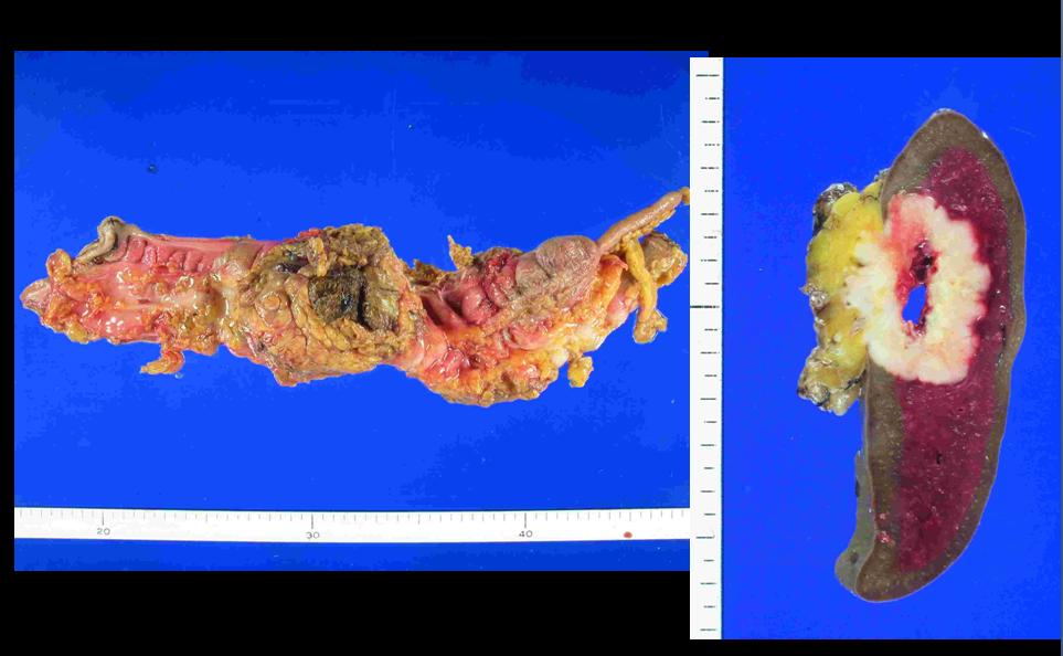 Pet Ct Colon Cancer Splenic Metastasis