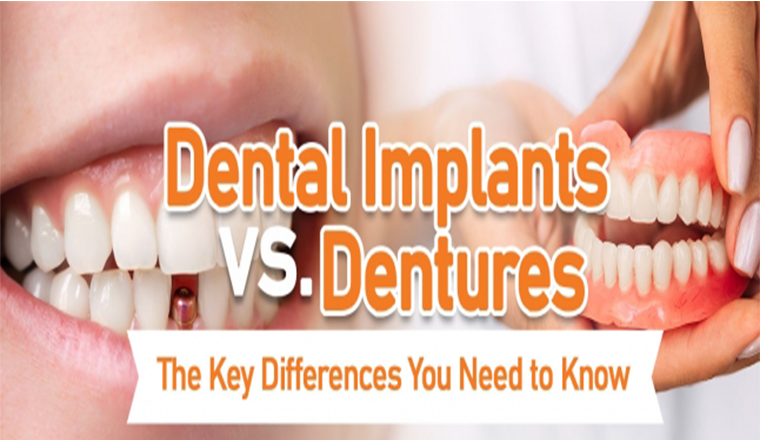 Dental Implants vs Dentures: Which One is Right for You? #infographic