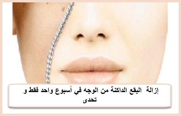 إزالة  البقع الداكنة من الوجه في أسبوع واحد فقط و تحدى