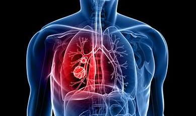 Tidak Merokok Tapi Bisa kena Kanker Paru-paru
