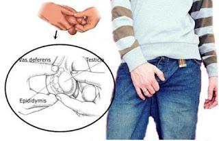 obat gatal pada buah zakar pria berkepanjangan