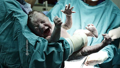 Estudantes de medicina cortam pênis de bebê em vez de cordão umbilical