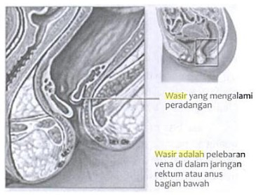Obat Wasir Resep Dokter Herbal di Apotik Tanpa Oprasi