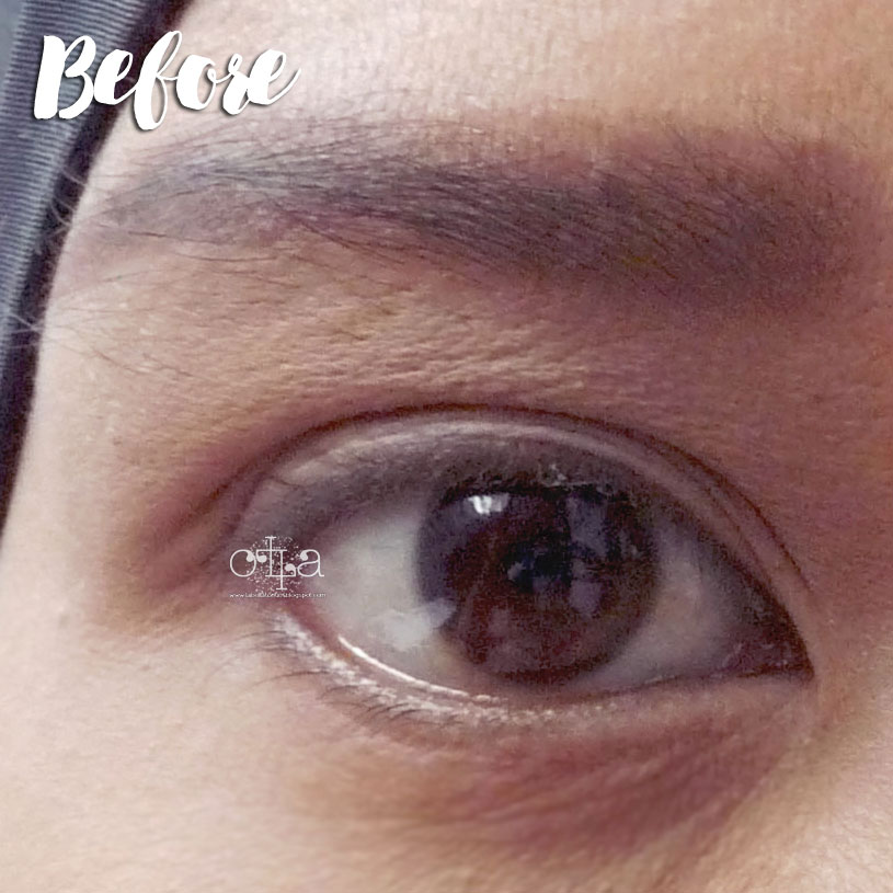 X2 Bio Lace Softlens Review Mata Before