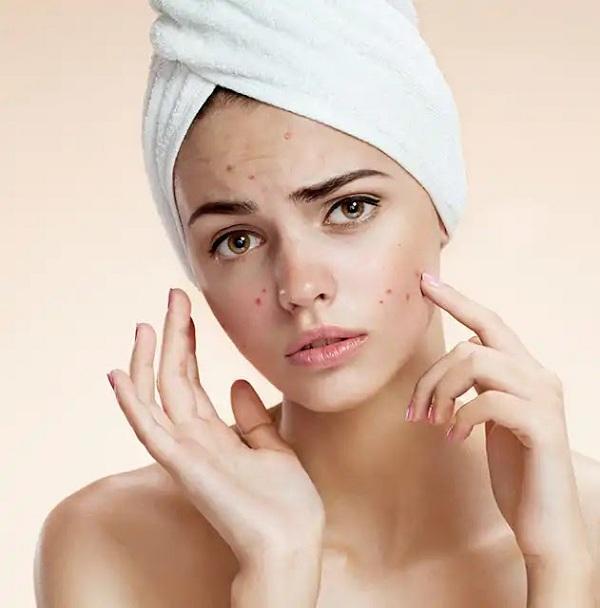 وصفة لإزالة الحبوب من الوجه