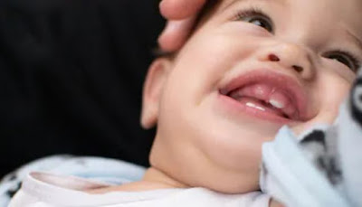 تعرف على اعراض التسنين عند الاطفال وعلاجها  وتأخر التسنين عند الأطفال