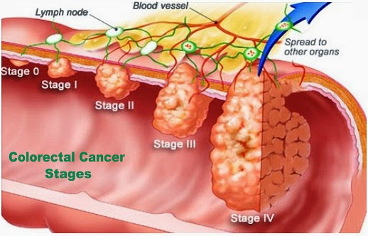 Stages Of Colorectal Cancer