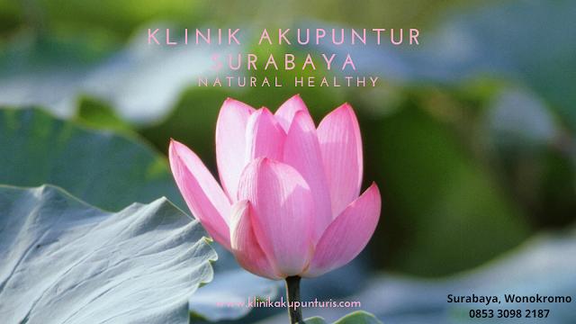 Klinik terapi akupuntur surabaya Wonokromo