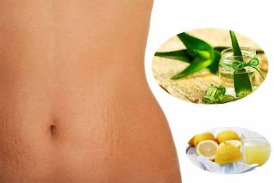 Best Natural Remedies For Stretch Marks