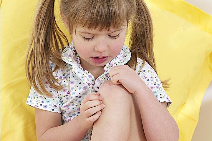 Artrita genunchi copii