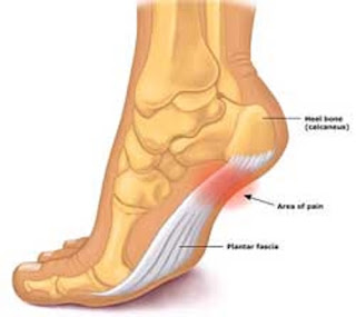 Surgery Treatment For Plantar Fasciitis