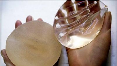 فضيحة عالمية أثرت على آلاف النساء.. بهذه الطريقة الخبيثه تتم عملية تكبيرالثدي «المعيبة»