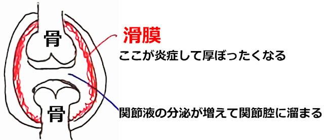 関節リウマチ 神戸やすらぎ訪問マッサージ