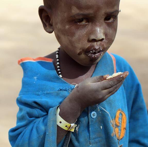 أكثر 10 دول تعاني من سوء التغدية في العالم