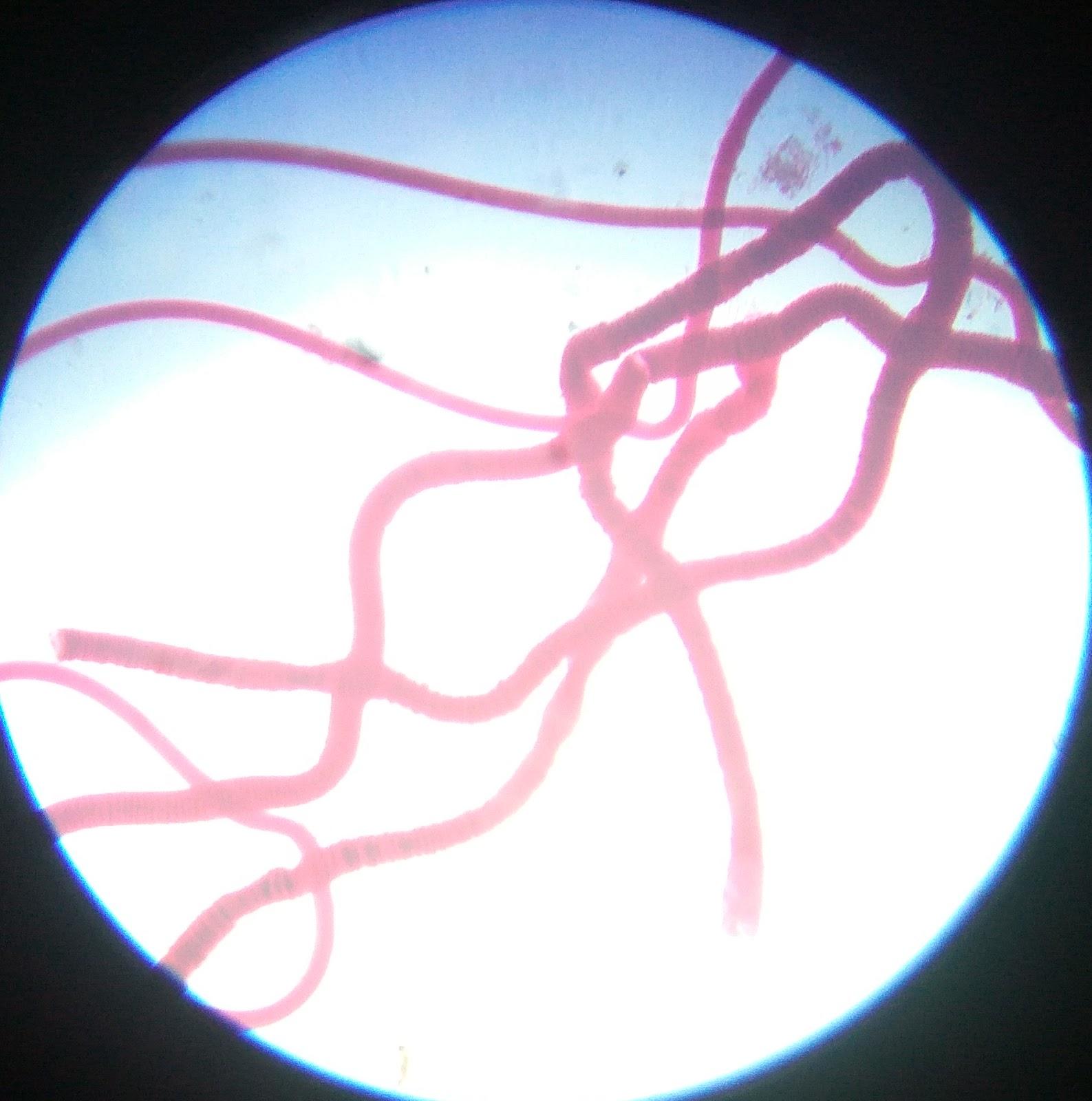 BOTANY TIMES: PRACTICAL EXAM-SPECIMENS SEEN UNDER MICROSCOPE