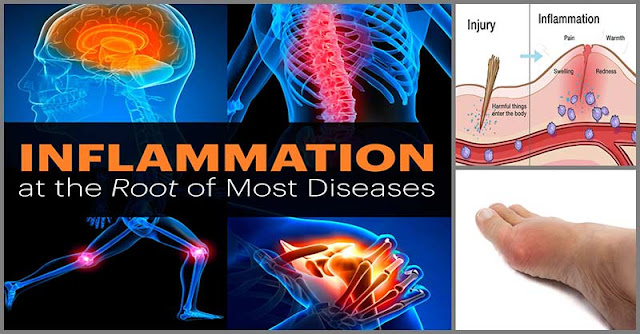 Herbs That Can Help Reduce Inflammations Naturally
