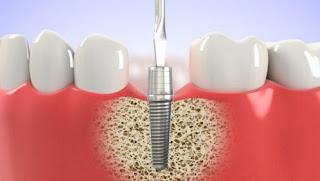 Trồng răng implant ở đâu tốt tại tphcm ở thời điểm hiện tại?
