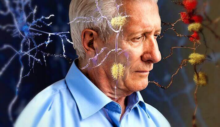 Estudo: Chá verde e cenouras podem reverter o Alzheimer, e restaurar a memória